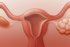 Polycystic Ovary Syndrome Disorder