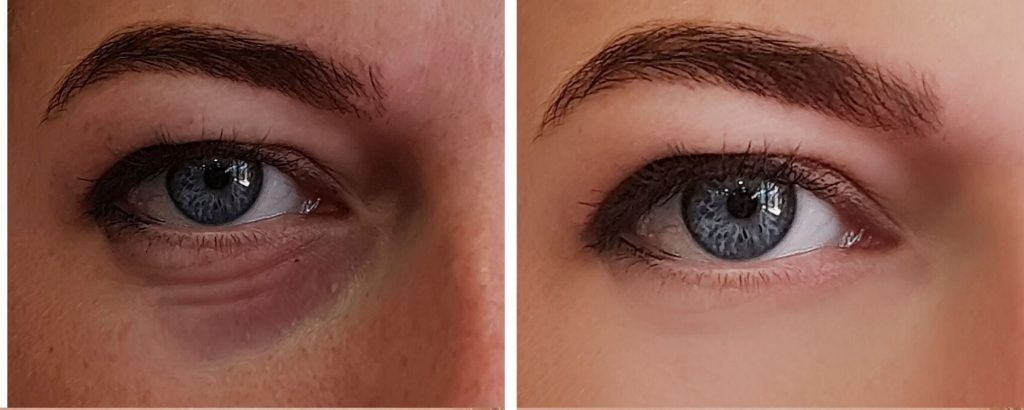 Eye Bag Removal without Surgery