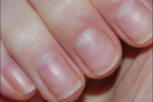 Horizontal Ridges in Nails