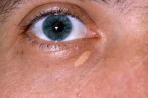 xanthelasma home remedy
